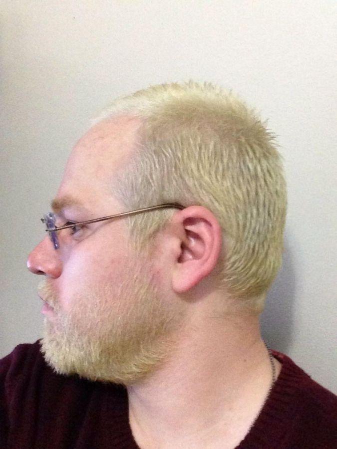 First bleaching 2